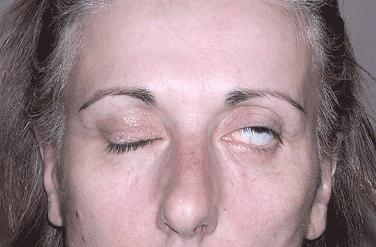 Paralysie faciale - FAMParis - Fédération des Amicales des Médecins ...